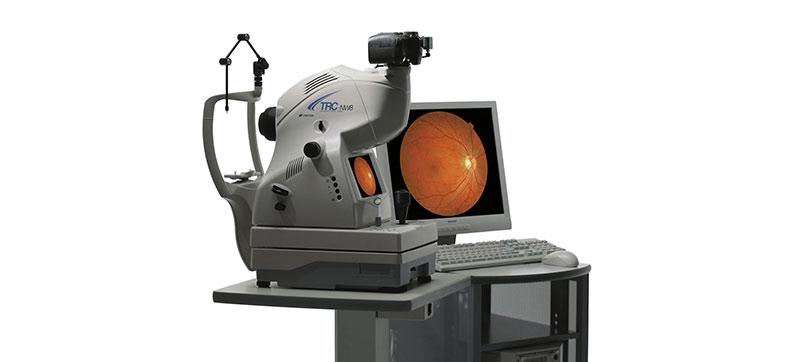 Digital retinal exam   Monocle Premier Eye Care   West University Optometry